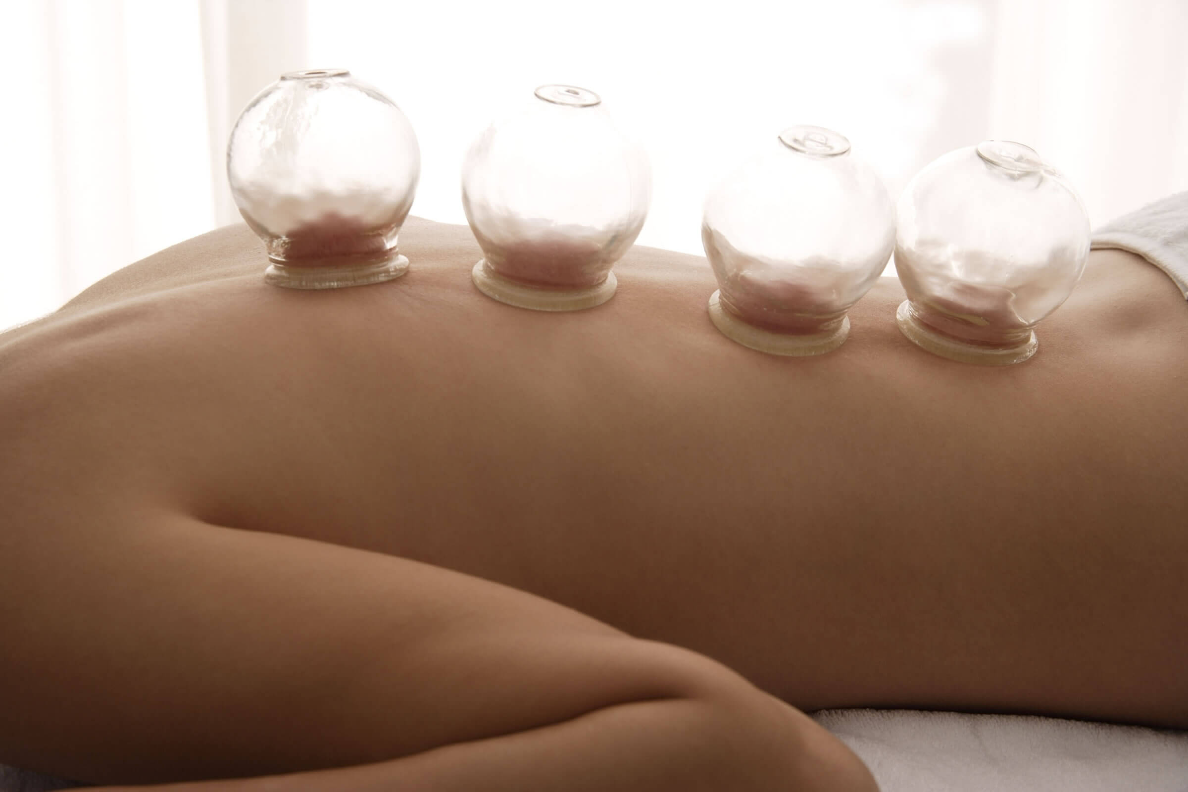 Cupping Ithaca Acupuncture - Awaken Acupuncture